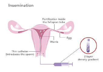 donor-insemination