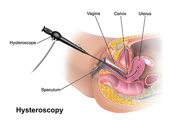 hysteroscopic
